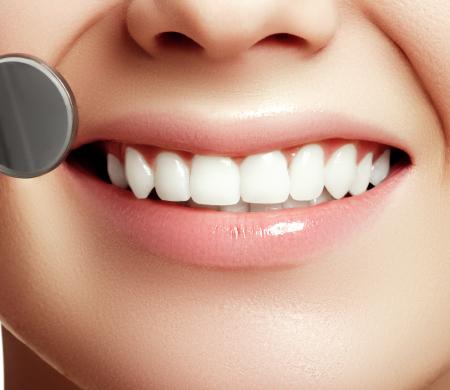 大切な歯をむし歯から守るために