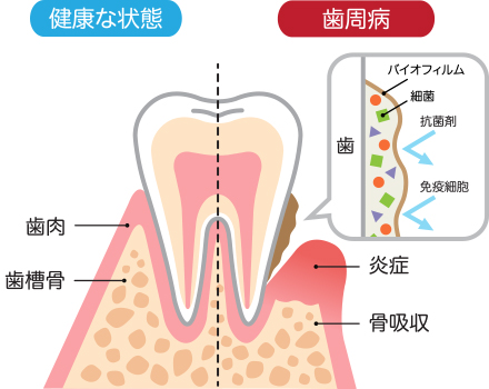 「歯周病」とは